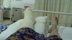 Leg in plastered and splinted by Russian orthopedic surgeon in Lusaka